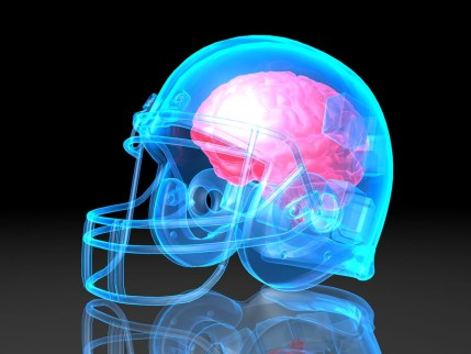 concussion-brain-football-helmet.jpg