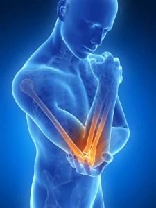 bras douloureux