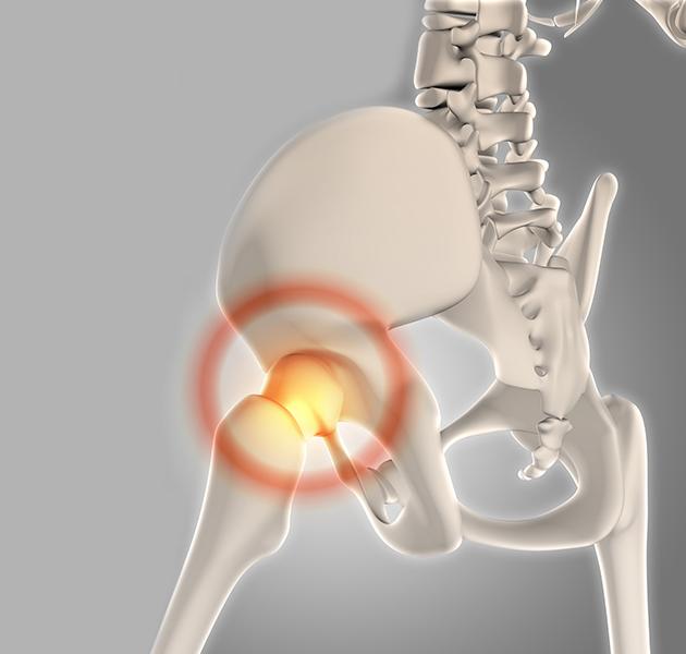 chirurgie de la prothèse totale de hanche à Nice