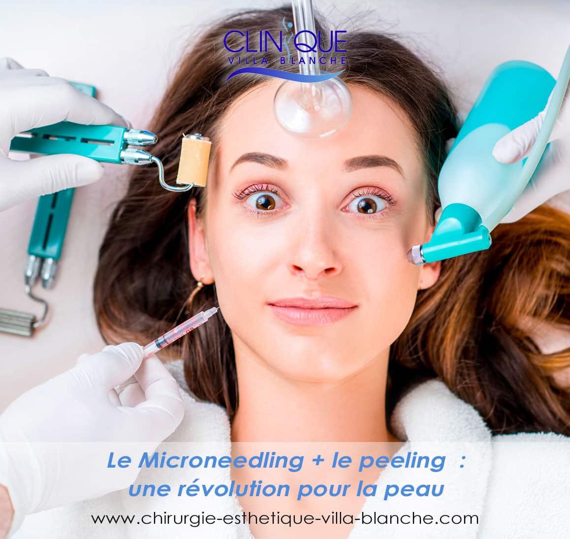 Le Microneedling+ le peeling : une révolution pour la peau