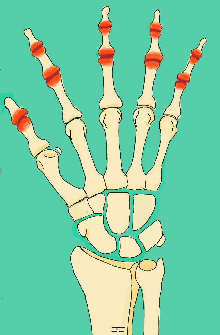 Arthrose - doigts