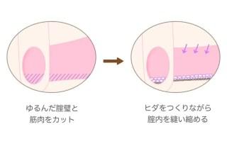 腟縮小手術の詳細(腟内の断面図で見た場合)