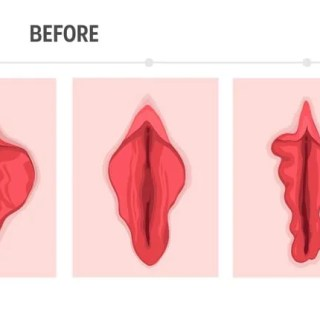 小陰唇縮小術のBEFORE AFTER
