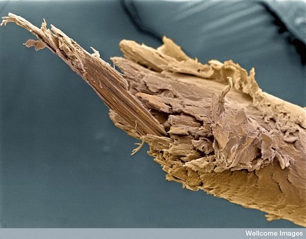 15 microscopic images from inside the human body (2/6)