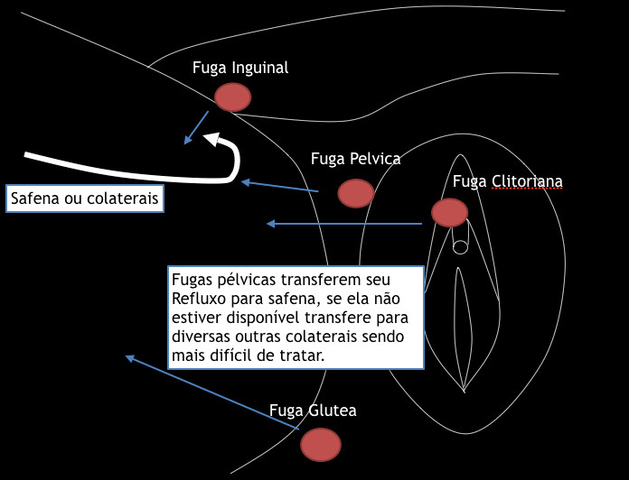 Pelvis leaks and varicose veins