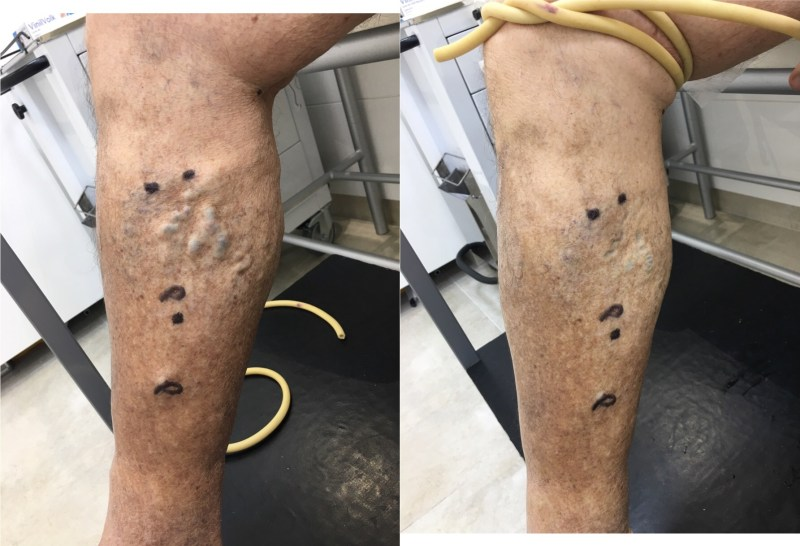 Perthes and varicose veins