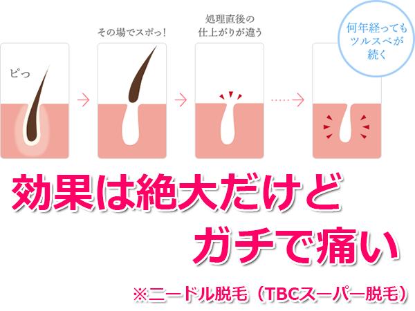 ニードル脱毛(スーパー脱毛)