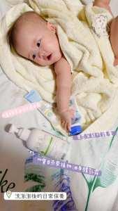 寶寶敏感肌膚如何照料