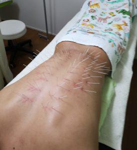 腰痛の施術例