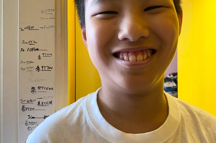 單車事故連根噴飛兩顆門牙 青少年意外這樣救回自信 感謝林口長庚與竹北正霖牙醫