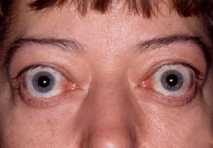 Popping eyes