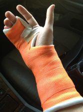 broken-hand