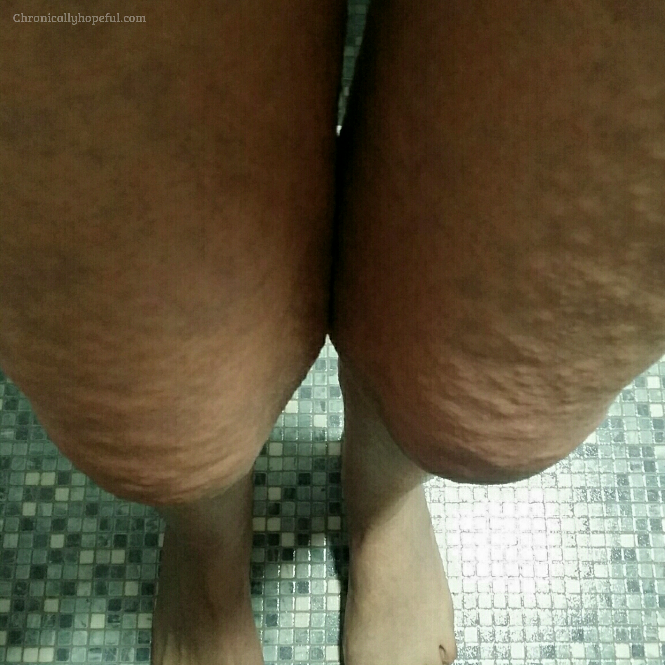 Hives Flaring On Legs, Histamine Intolerance, Chronically Hopeful