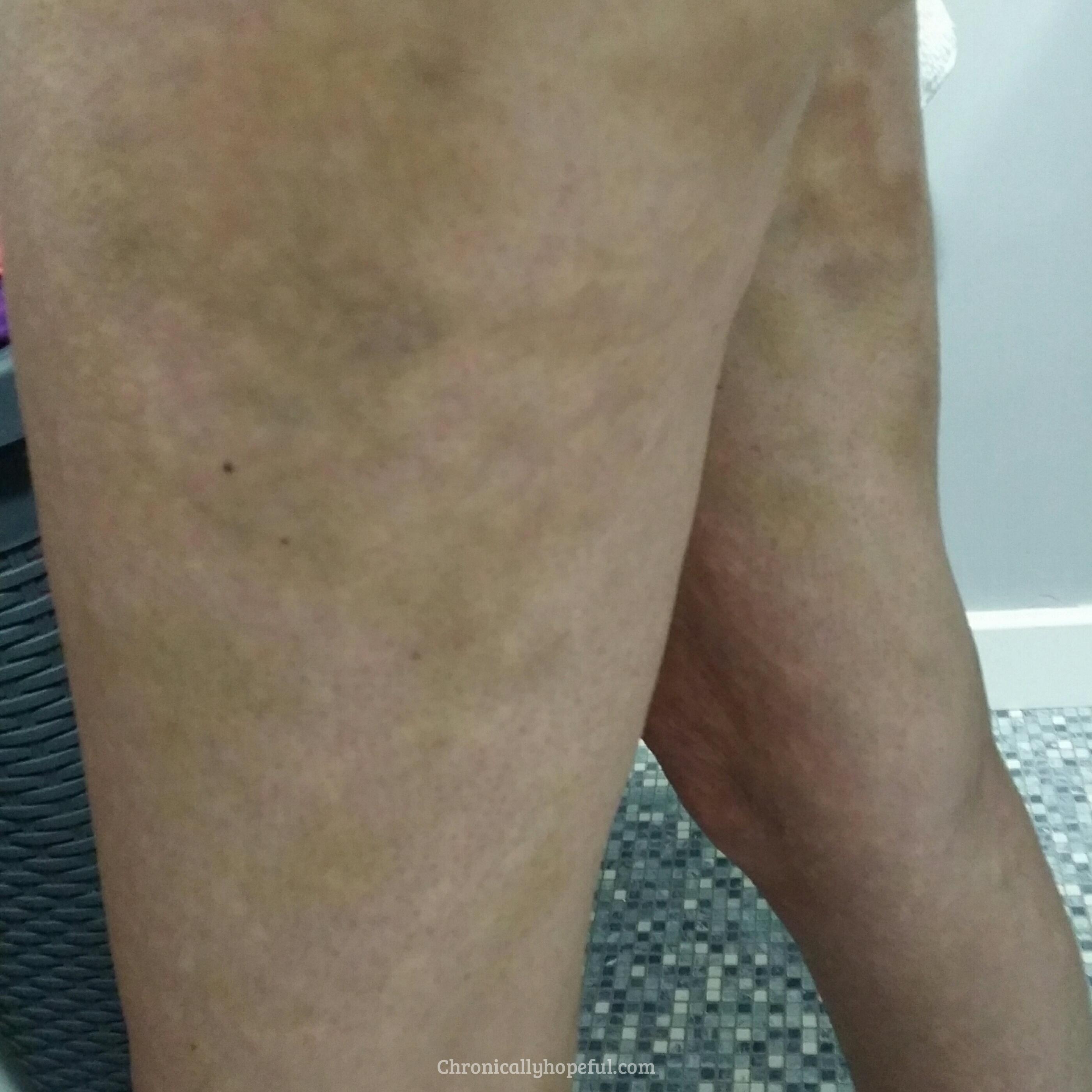 Bruising On My Legs, Histamine Intolerance, Chronically Hopeful