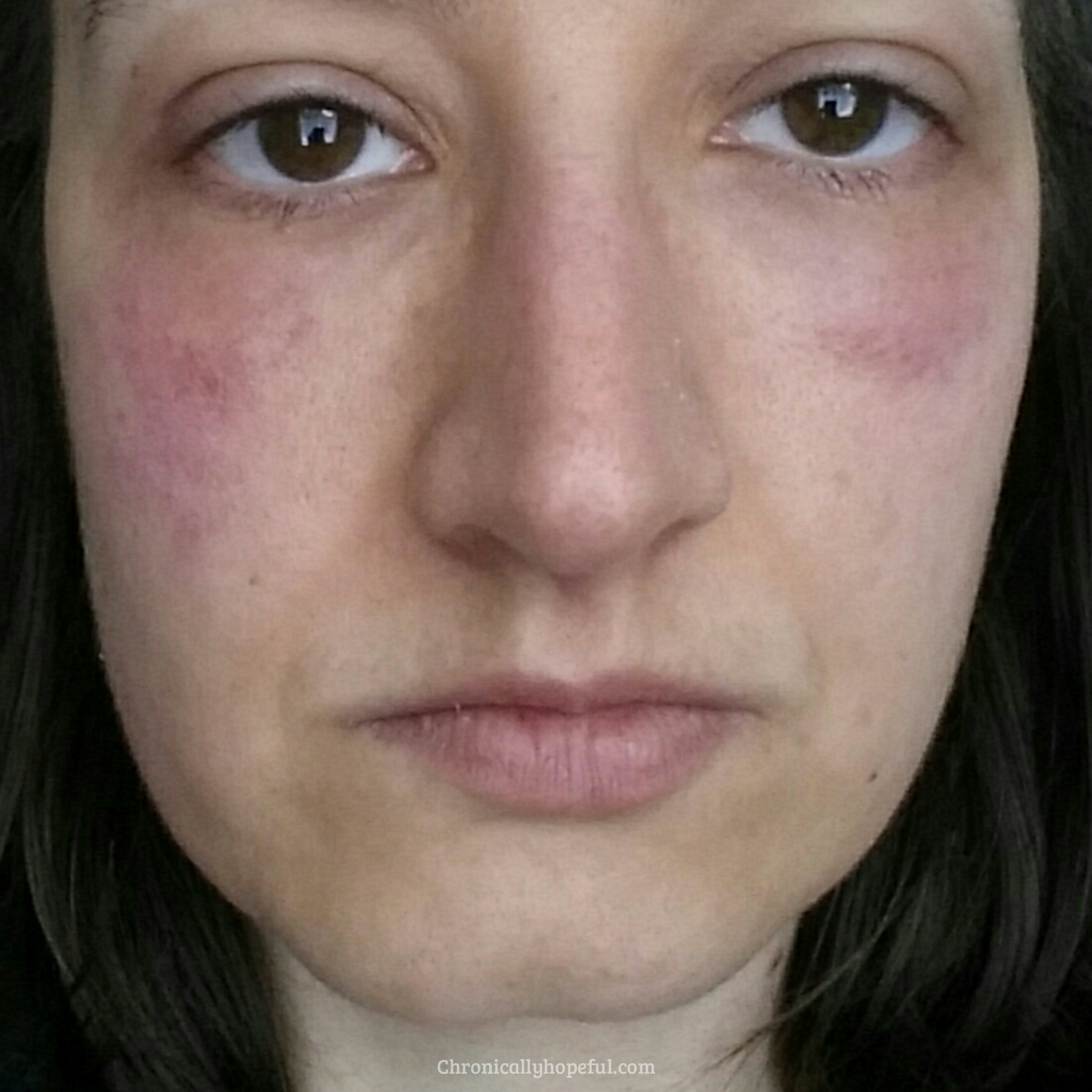 Rash On My Face, Histamine Intolerance, Chronically Hopeful
