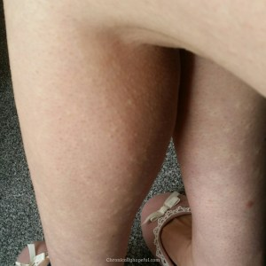 daily hives on legs