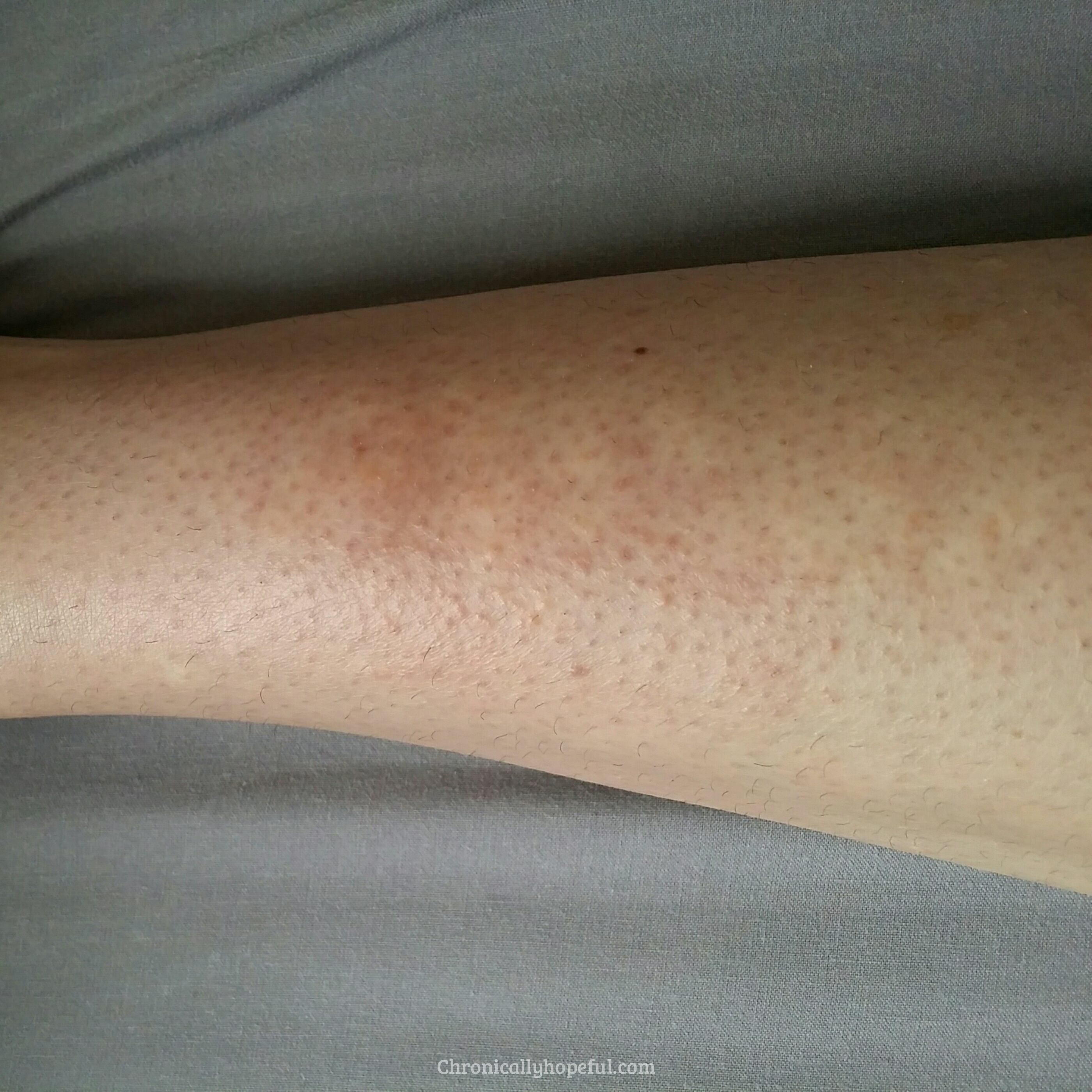 Initial rash, Histamine Intolerance, Chronically Hopeful