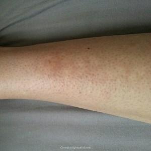 Initial rash