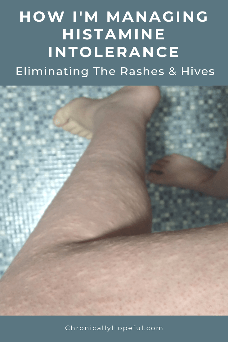 Char's bare leg full of itchy bumps. Title reads: How I'm managing histamine intolerance. Eliminating the itching, rashes and hives.