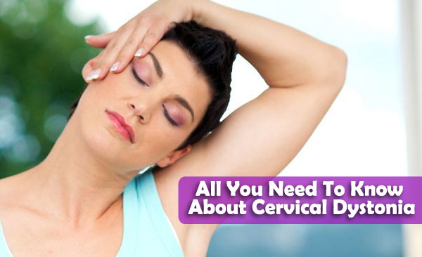 All You Need To Know About Cervical Dystonia