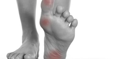 symptoms of foot pain in Rheumatoid Arthritis