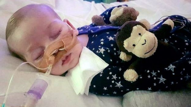 Charlie has a rare genetic condition and would not live to see his first birthday, his father said