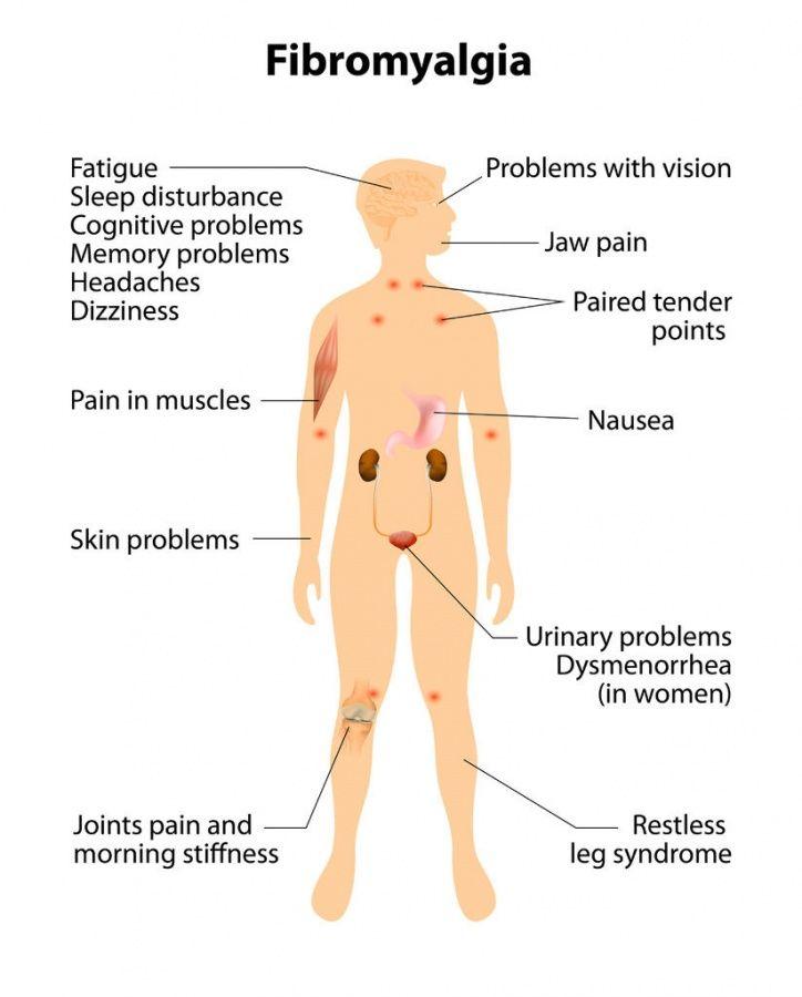 fibromyalgia_symptoms_body39548220_ML