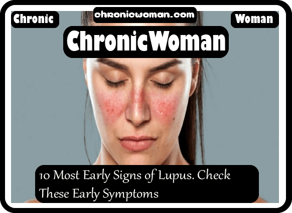 10 Most Early Signs of Lupus