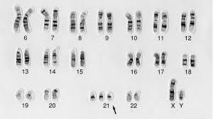23 paires de chromosomes. Mais 3 chromosomes 21 chez un trisomique