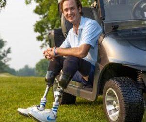 Jordan Thomas: βοηθώντας παιδιά να αποκτήσουν προσθετικό πόδι