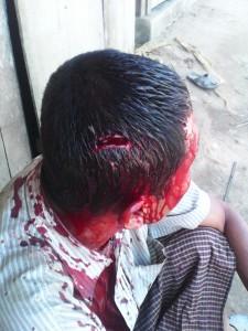 বাঙালি সেটলারদের হামলায় আহত পান্দুক্যা চাকমা