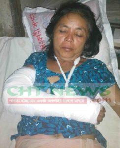 বিজিরি হামলায় আহত গোপা চাকমা। তার হাত ভেঙে গেছে। পুলিশ তাকেও গ্রেফতার করেছে। বর্তমানে পুলিশ প্রহরায় খাগড়াছড়ি সদর হাসপাতালে চিকিৎসাধীন।