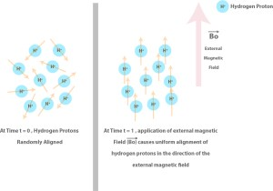 Applying a powerful external magnetic field leads to uniform alignment of hydrogen protons in the human body