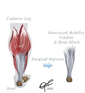 Cadaver Achilles Tendon Graft Harvest for ACL Reconstruction