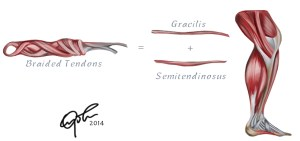 Braided Hamstring Tendon Graft