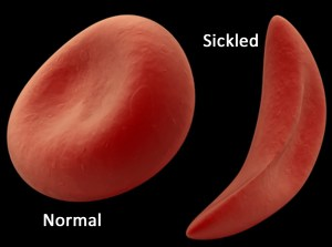 "A normal red blood cell (left) and a ""sickled"" red blood cell (right)"