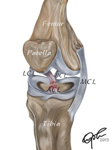 A torn ACL can lead to significant knee instability