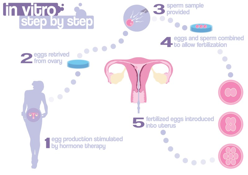 Visual Illustration of the in vitro fertilization process - step by step