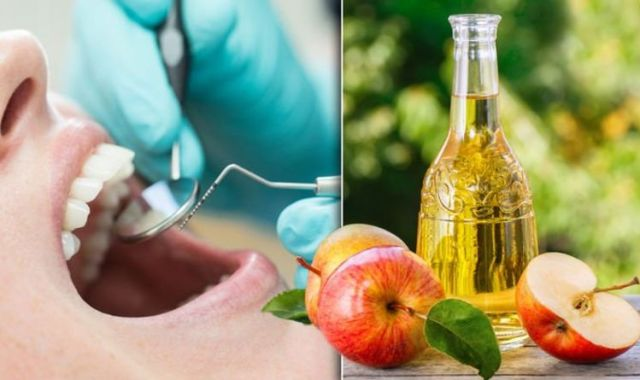 Uống giấm táo giảm cân nhưng không có lợi cho men răng