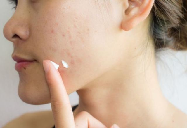 Bộ sản phẩm skincare cho da dầu mụn