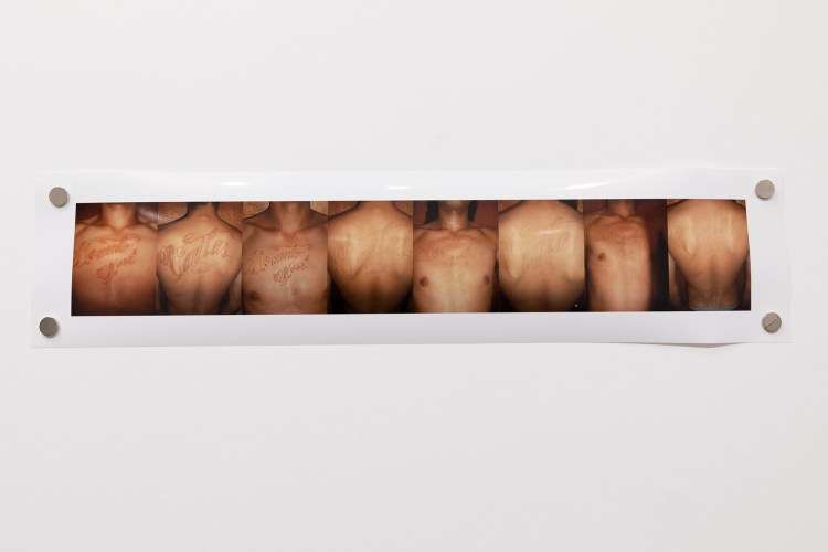 "Photograph of different views of a scarred body with the words ""Memento Mori/ Vanitas"""