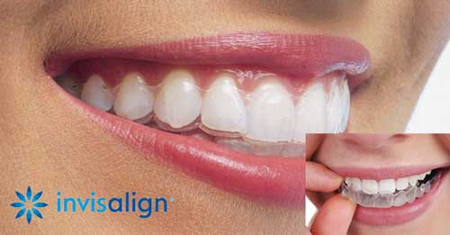 The Complete Guide to Invisalign - Church Road Dental Practice