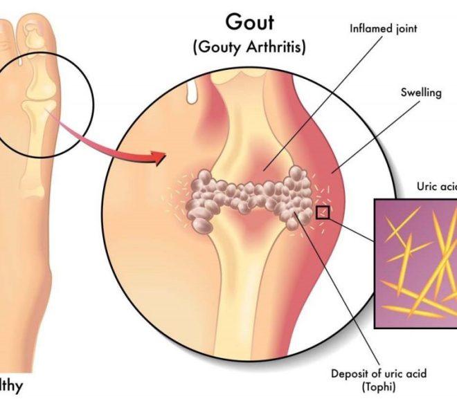 Bệnh gút (gout) có chữa khỏi hoàn toàn được không?