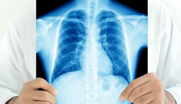 Értesítés tüdőszűrésről
