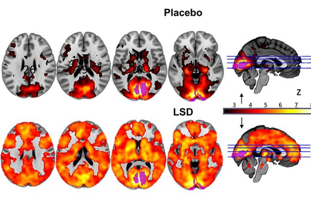 lsd-placebo