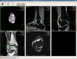 Software libre para la medicina y la salud