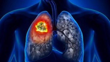 Як легко покращити роботу легенів
