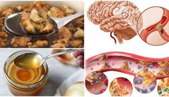 Натуральні засоби, які допоможуть очистити судини та поліпшать кровообіг