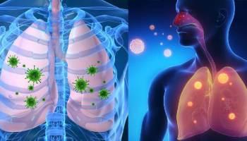 11 потужних домашніх засобів від вірусних інфекцій, кашлю, бронхіту та застуди!