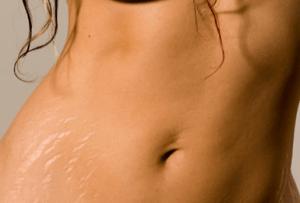 stretchmarks